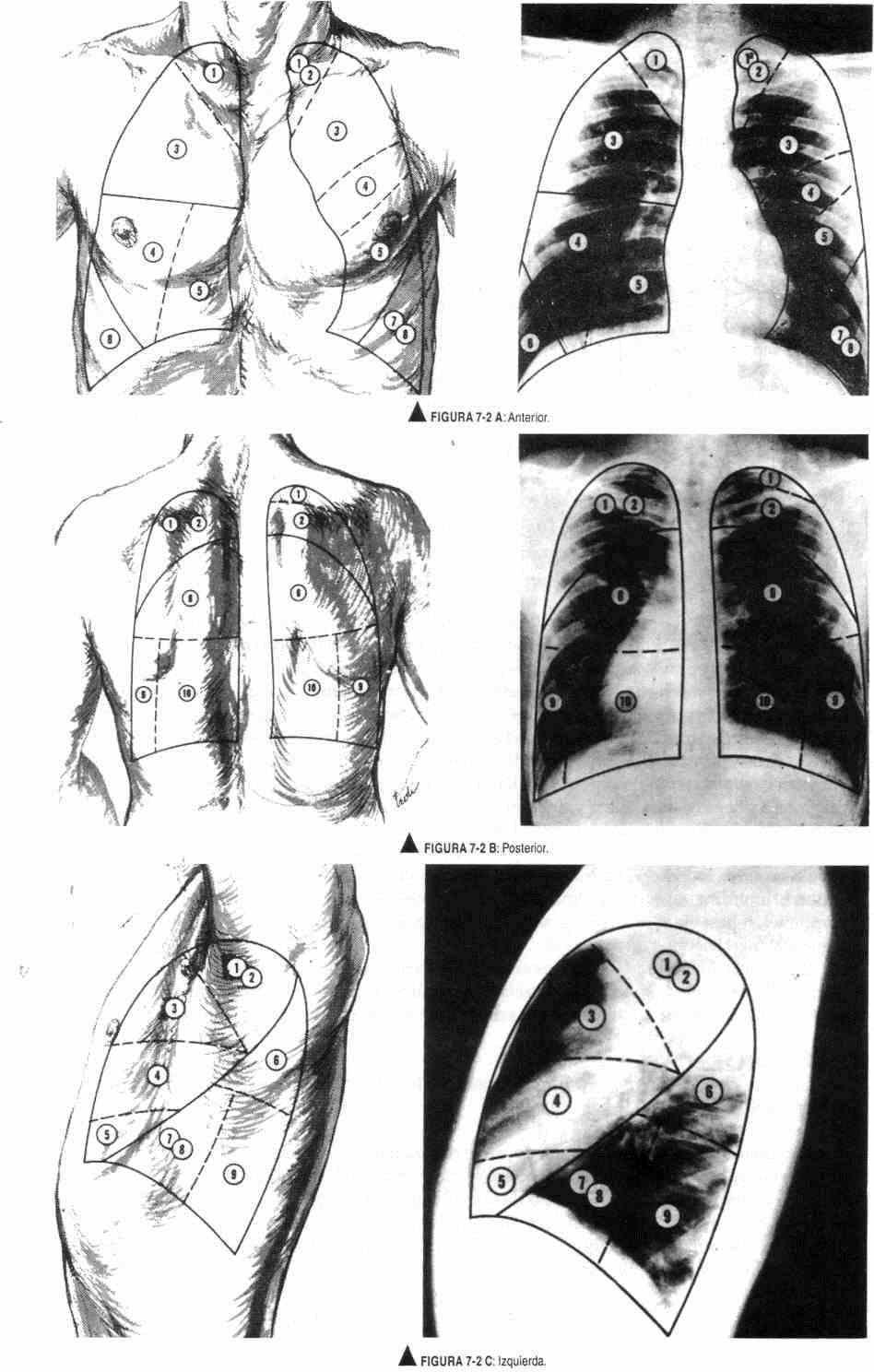 Examen físico del tórax normal