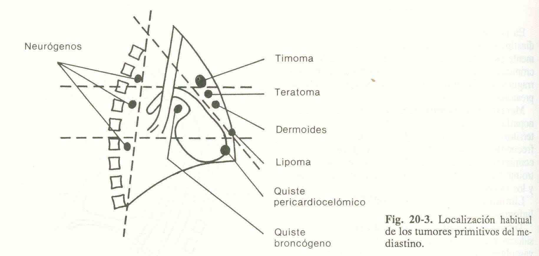 Síndromes mediastínicos